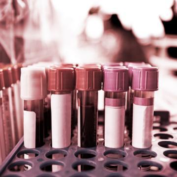 zika test tubes medical research blood
